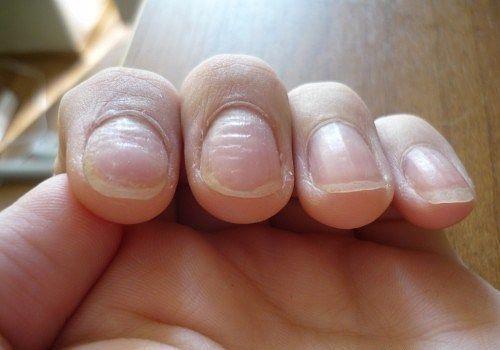 Волнистые ногти на руках что делать